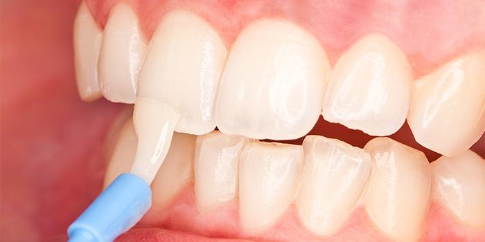 Фторирование зубов и ремотерапия