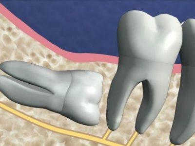 Удаление ретенированных зубов